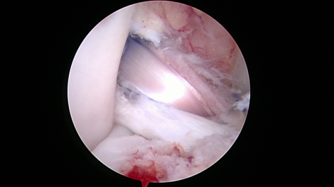 Arthroscopic view of ACL reconstruction technique in a dog